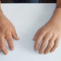 proteza mana